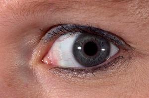 Tracey's eye